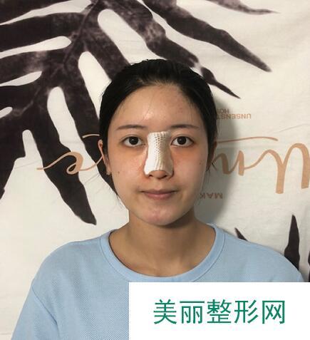 鼻中隔隆鼻术后两个月恢复过程展示,附图~