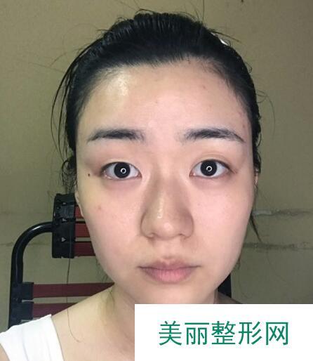 肉毒杆菌瘦咬肌的全过程及术后恢复照片大放送