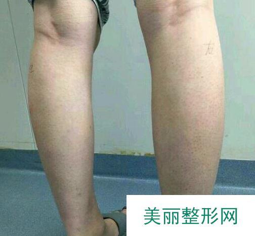 肉毒杆菌注射瘦小腿改善小粗腿 一位肌肉腿小姐姐的真实分享