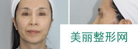 美容祛斑手术后脸变得干净白嫩,效果炒鸡满意了