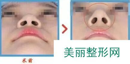 瑞兰隆鼻手术后我也能拥有了网红小翘鼻