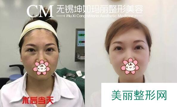 不手术去眼袋的方法:祛眼袋so  easy后悔没有早点做