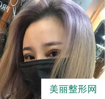 韩式压双眼皮让我的眼睛有了大改变,轻松拥有明亮双眸