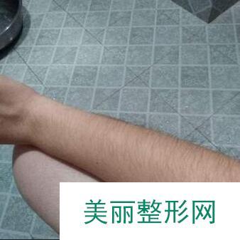 激光脱毛的效果真的敲棒,四肢做了几次就变得干干净净