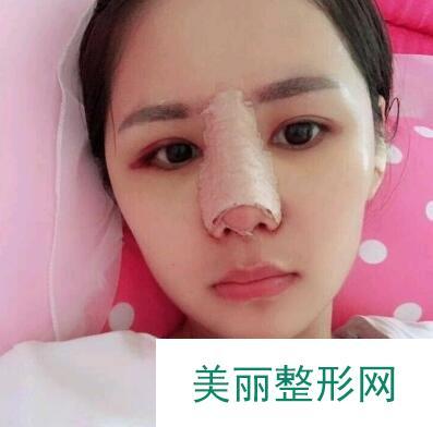 佛山华美整形美容医院做完自体耳软骨隆鼻,原来拥有美鼻这么简单