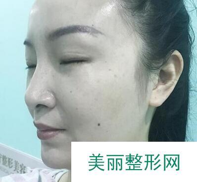 合肥光美整形美容医院做完面部吸脂,我也终于有了瓜子脸