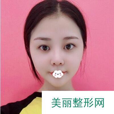 面部吸脂瘦脸项目改善大脸,变成小脸妹子美翻天