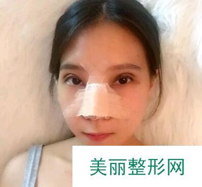 广东广州美恩整形做的切开双眼皮,再也不羡慕别人的双眼皮了