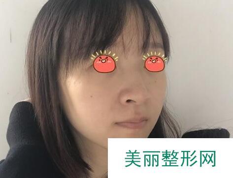 嘉兴曙光整形做的驼峰鼻矫正3个月鼻子变化炒鸡大
