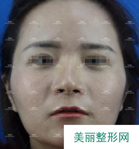 南京华韩奇致美容医院做了脂肪面部移植后,对自己的颜值有了自信