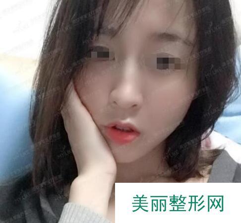 在南京美莱做的脂肪填充,脸蛋儿变得水嫩嫩的特别减龄