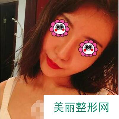 北京京民医院整形科面部吸脂一个月脸小了不说还更年轻了