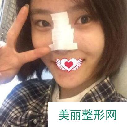 在秦皇岛纪辉整形医院做硅胶隆鼻后气质变好了,果然没选错医院