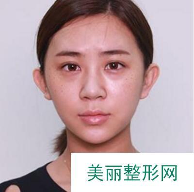 李子鹏_医生主页_膨体隆鼻案例