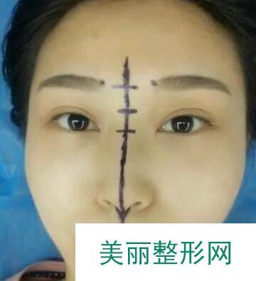 秦皇岛巧致整形医院做完硅胶隆鼻后差点被自己美晕