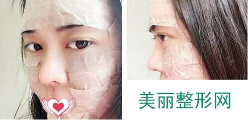 做完脂肪移植全脸填充三个月爱上自己的美貌