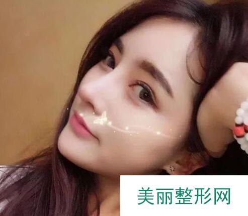 深圳阳光整形美容医院自体软骨隆鼻鼻综合日记呈上