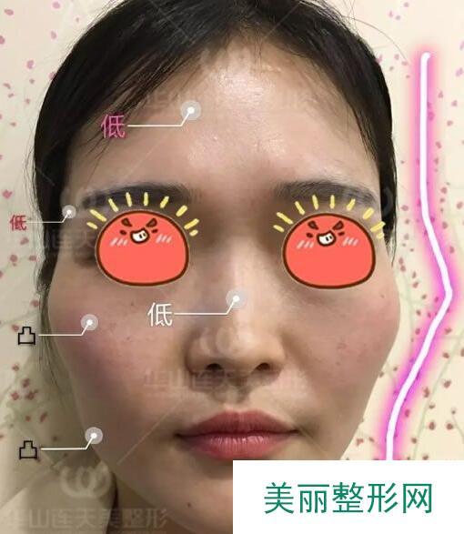 杭州华山连天美整形案例_前颧骨磨骨日记