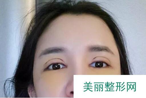双眼皮不明显怎么改善?抱着忐忑的心去割了,没想到效果还不错