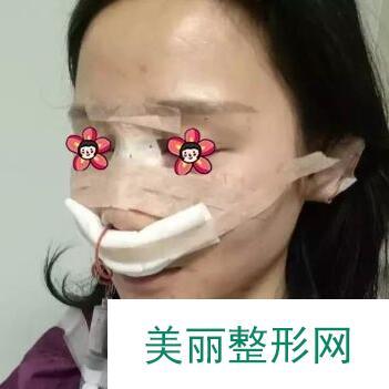 鼻综合恢复期从十天开始就要好受一些了