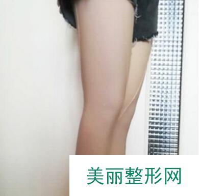 大腿抽脂后一个多月的恢复记录,从大象腿到天鹅腿的蜕变