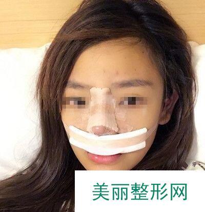硅胶隆鼻后告别了大鼻头,恢复全过程都在这了