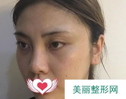 长沙雅美隆鼻过程记录,变化太大了