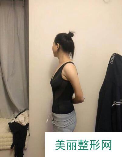 背部吸脂瘦身术终于减掉了我的水桶腰,可以浪一番了