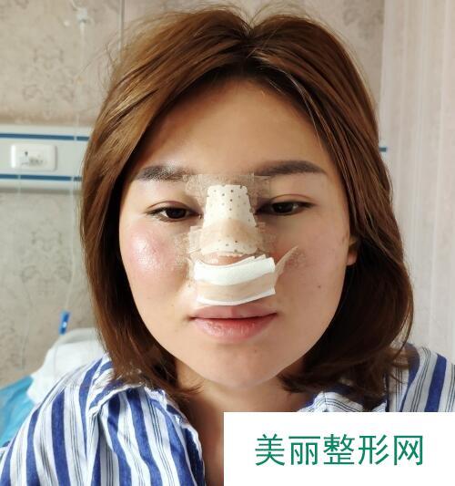 韩式鼻部整形术第五天就不怎么肿痛了【恢复图】