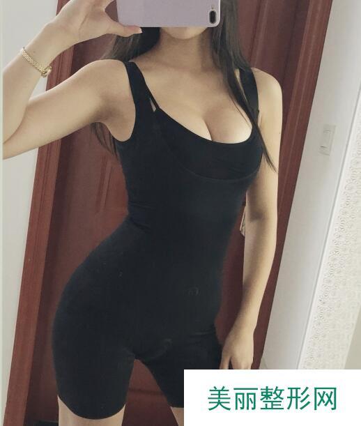 妙桃琴面假体丰胸效果展示,是你想要的胸部吗?