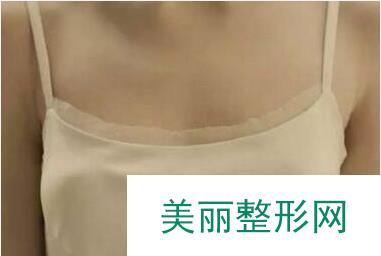 胸部下垂整形,矫正之后还大了几个罩杯