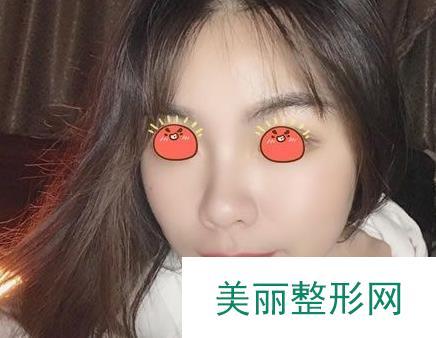 南京光尔美祛斑中心祛斑一个多月的恢复记录