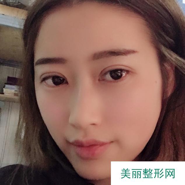长沙脸博士双眼皮案例分享,有了双眼皮气质更好了