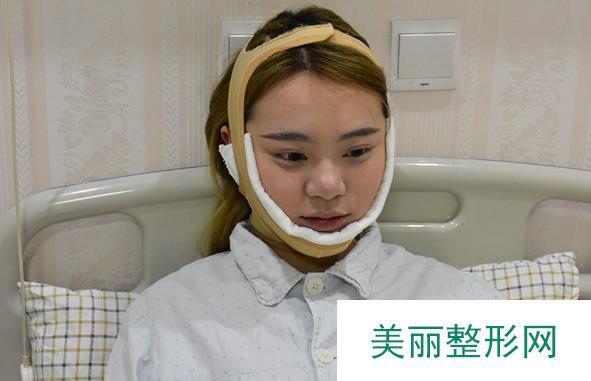去下颌角之后的变化看得见,四个月恢复过程与你们共享