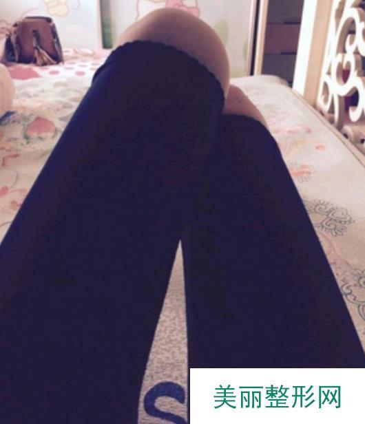 溶脂减肥手术让追求完美的我终于有了纤细大腿