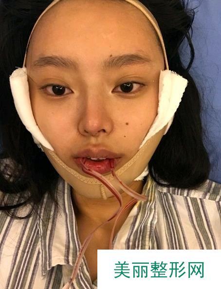 下颌角截骨手术虽然很恐怖,但是恢复之后真的让我满意