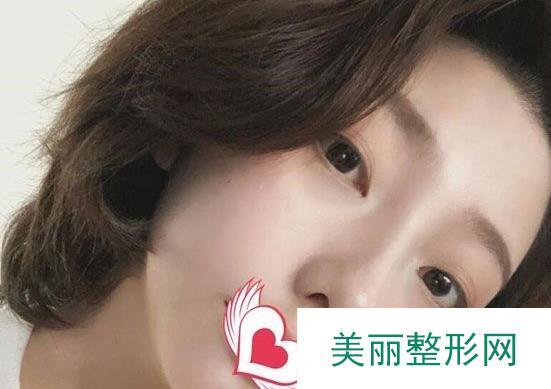 鼻头缩小手术对比图,记录1周到1个月的恢复过程