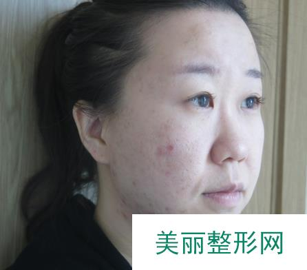 复合彩光祛痘解救我多年的皮肤问题