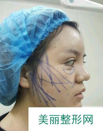 微创面部提升手术让我把握住了青春