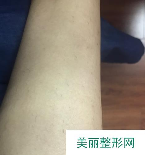 夏天来临北京冰点脱毛让我终于可以秀出美臂美腿了