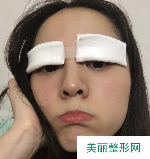 韩式埋线双眼皮医院推荐这家