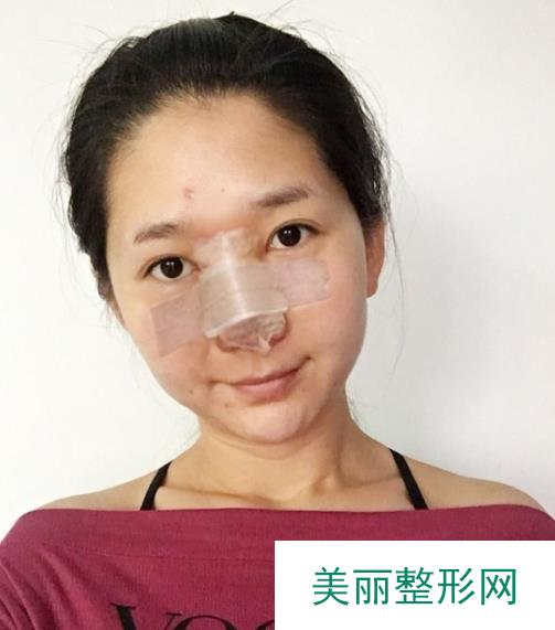 全鼻再造术拯救了我的丑鼻让我拥有小巧自然的美鼻