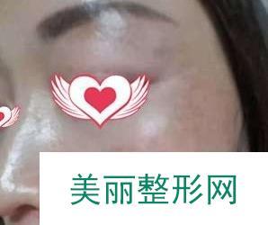 皮肤激光美容