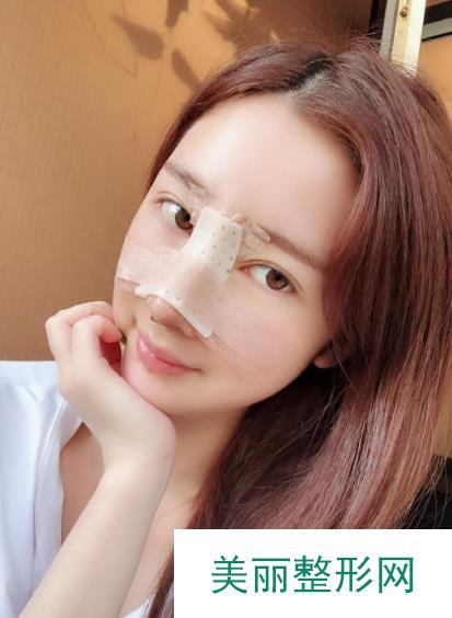 北京假体隆鼻效果如何?分享这个让我形象发生翻天覆地变化的手术~
