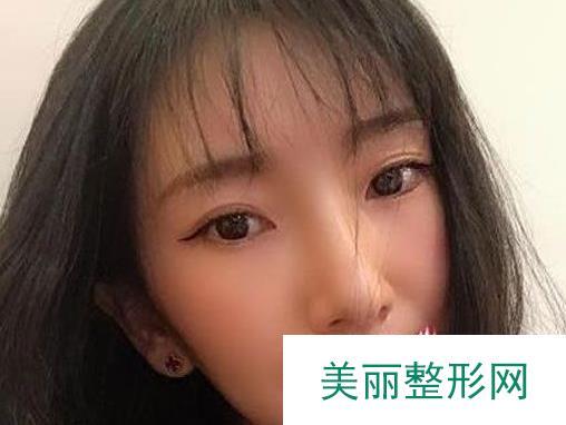 北京做激光除皱一个月,脸摸起来细腻白嫩多了
