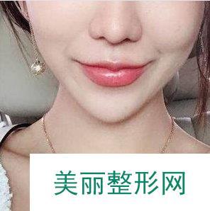 非手术丰唇方法超级推荐玻尿酸,轻松打造性感M唇!