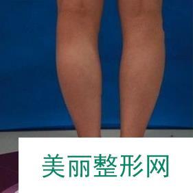 瘦腿针瘦小腿后肌肉腿脚斗士变成小鸟腿仙女
