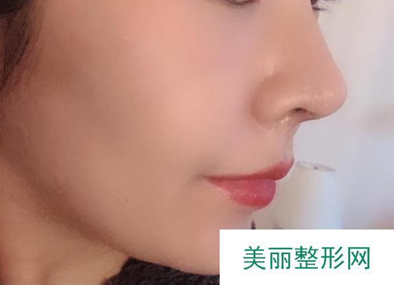 扁鼻子怎么办?真人术后分享帮你找到方法