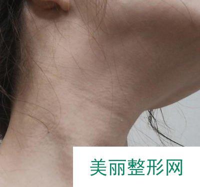 颈部皮肤除皱助我练就天鹅颈,脖子年轻了十岁
