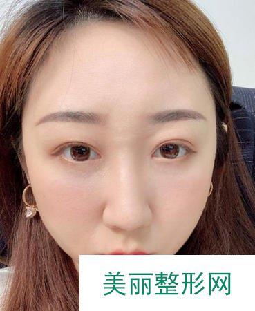 吸脂去眼袋技术女性一定要了解的冻龄神术